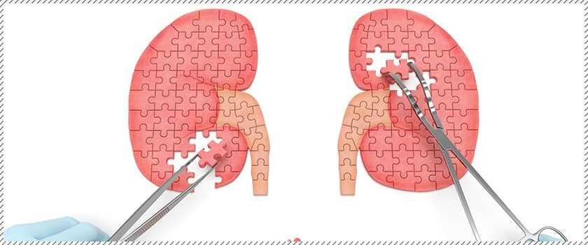 Kidney Innerbanner