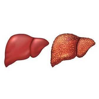 Liver Innerthumbnail