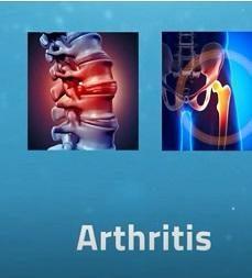 Aster Speak Arthritis