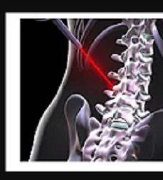 Minimally Invasive Spine Surgery 29