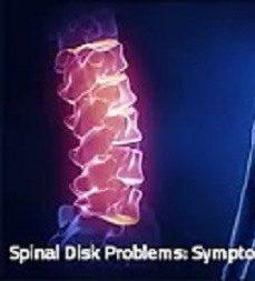 Spinal disk problem aster speak