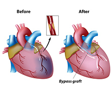 Cabg cardiac